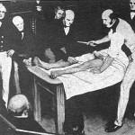Robert Liston, i ferd med å hacke et ben